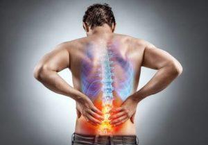 Bandscheibenvorfall Rueckenschmerzen